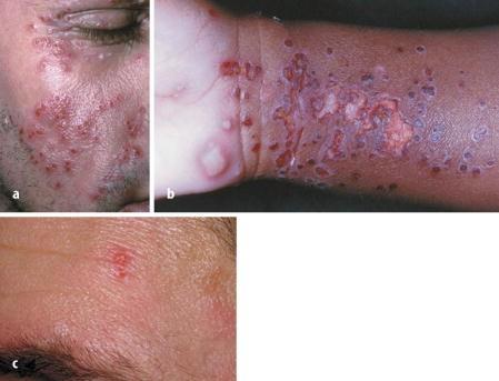 Mann herpes Natural Treatments