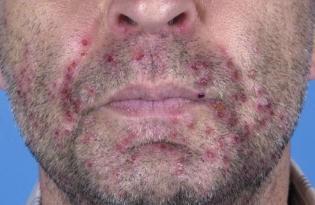 Kinn herpes am Ursachen geschwollener