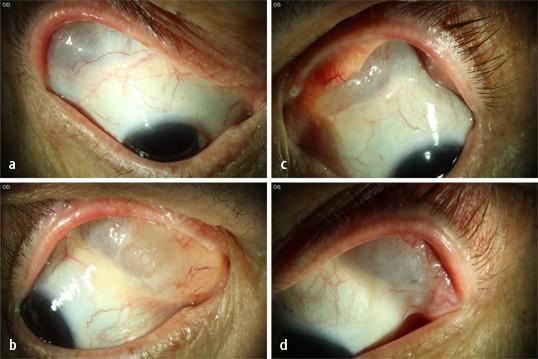 ablatio retinae mi a vizuális kontraszt
