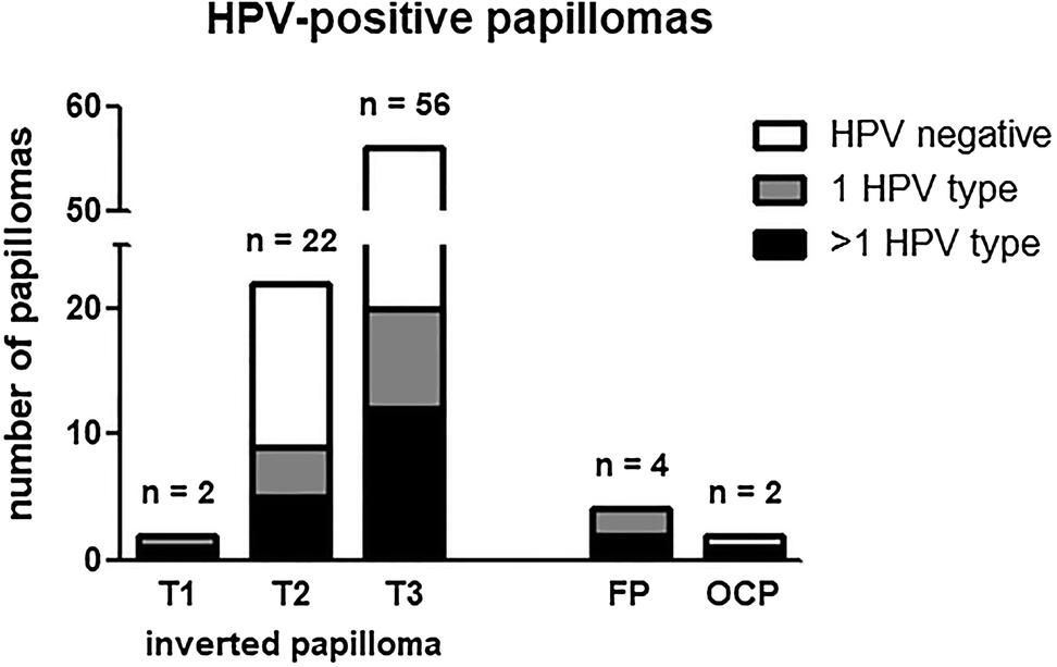 Papillomas rate - Tumoră vaginală atipică asociată infecţiei HPV