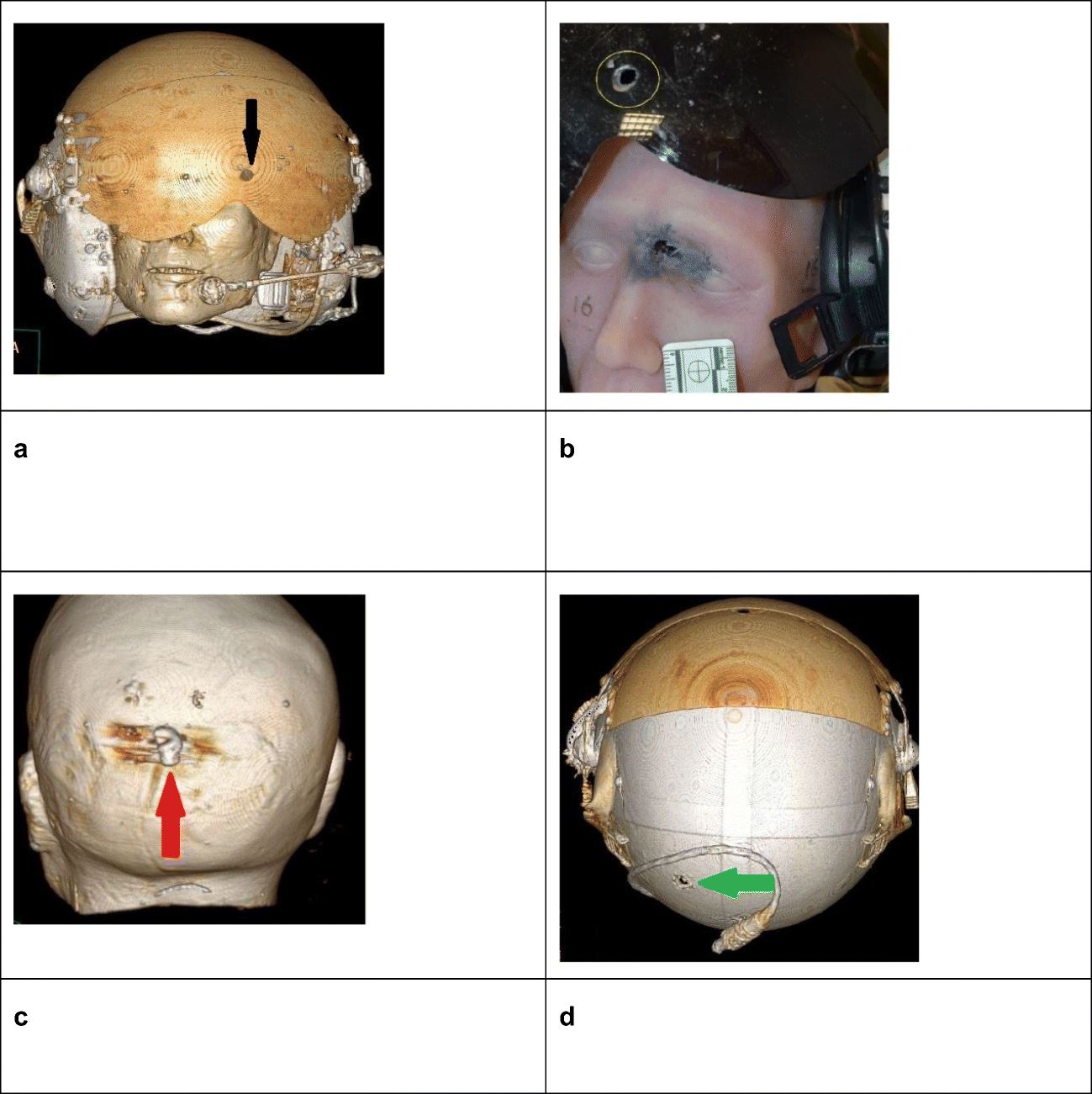 Figure 7 Shooting Through Windscreens Ballistic Injury Assessment Using A Surrogate Head Model Two Case Reports Springerlink Polish your personal project or design with these bullet holes transparent png images, make it even more personalized and more attractive. springerlink