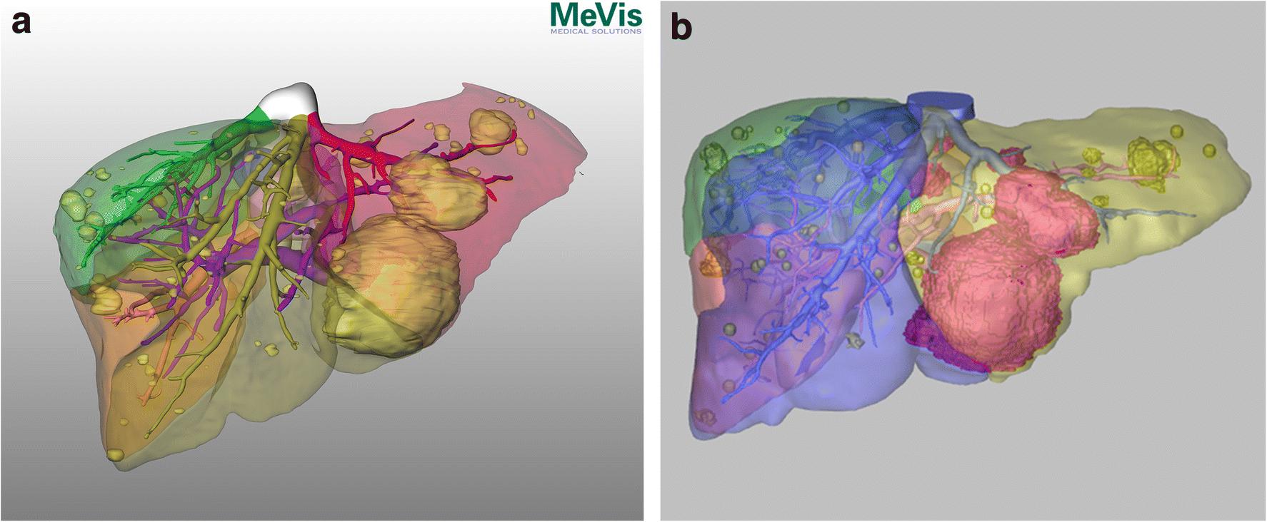 Cancer in hepatic vein. Uploaded by - Cancer in hepatic portal vein