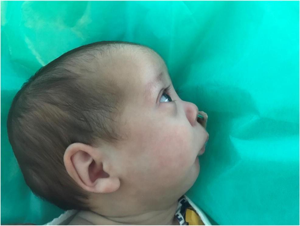 EE/_ LN/_ Baby Toddler Nose Cleaner Vacuum Suction Nasal Mucus Running Care Aspira