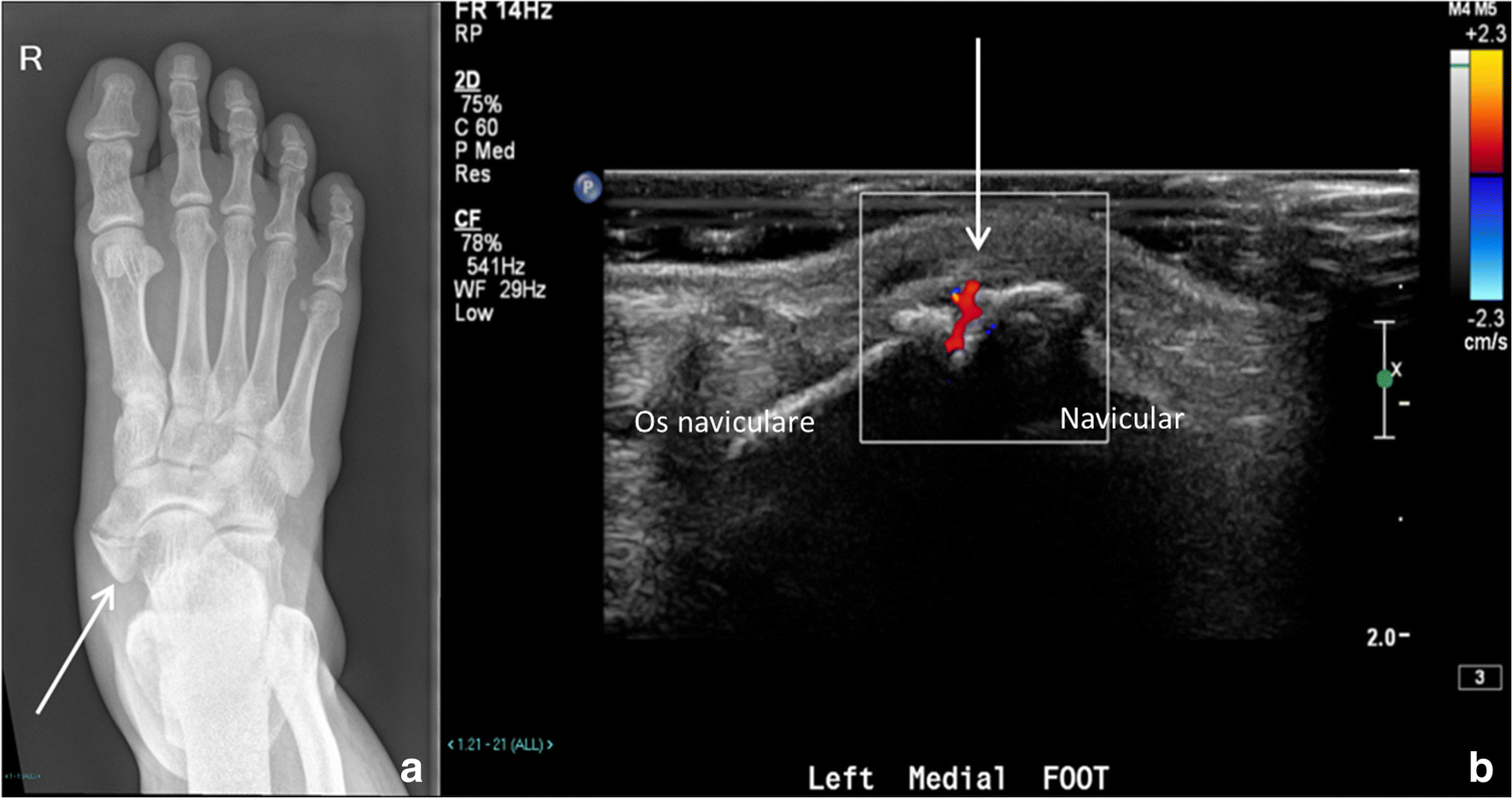 Figure 12 Accessory Ossicles Of The Foot An Imaging Conundrum Springerlink Foot movement that tips the soles medially, somewhat facing each other. figure 12 accessory ossicles of the