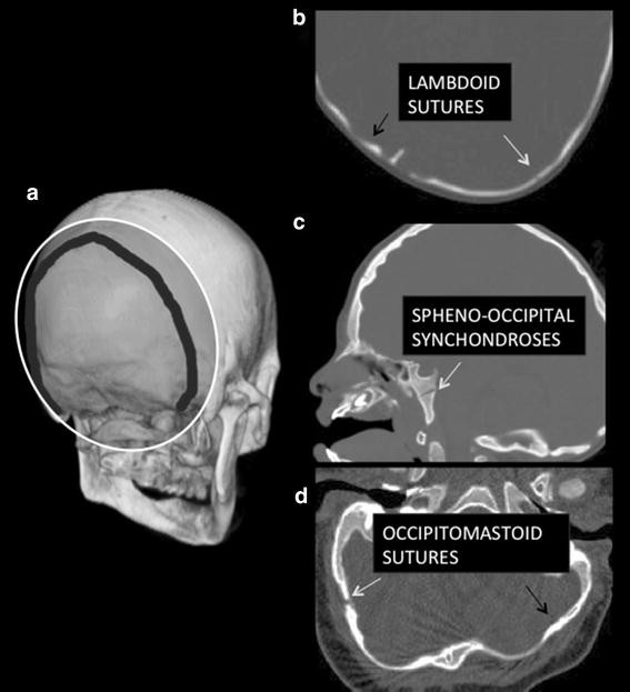 Figure 3 Identification Of Skull Base Sutures And Craniofacial Anomalies In Children With Craniosynostosis Utility Of Multidetector Ct Springerlink The closure of this synchondrosis proceeds in an orderly fashion, beginning at the superior border and progressing. springerlink