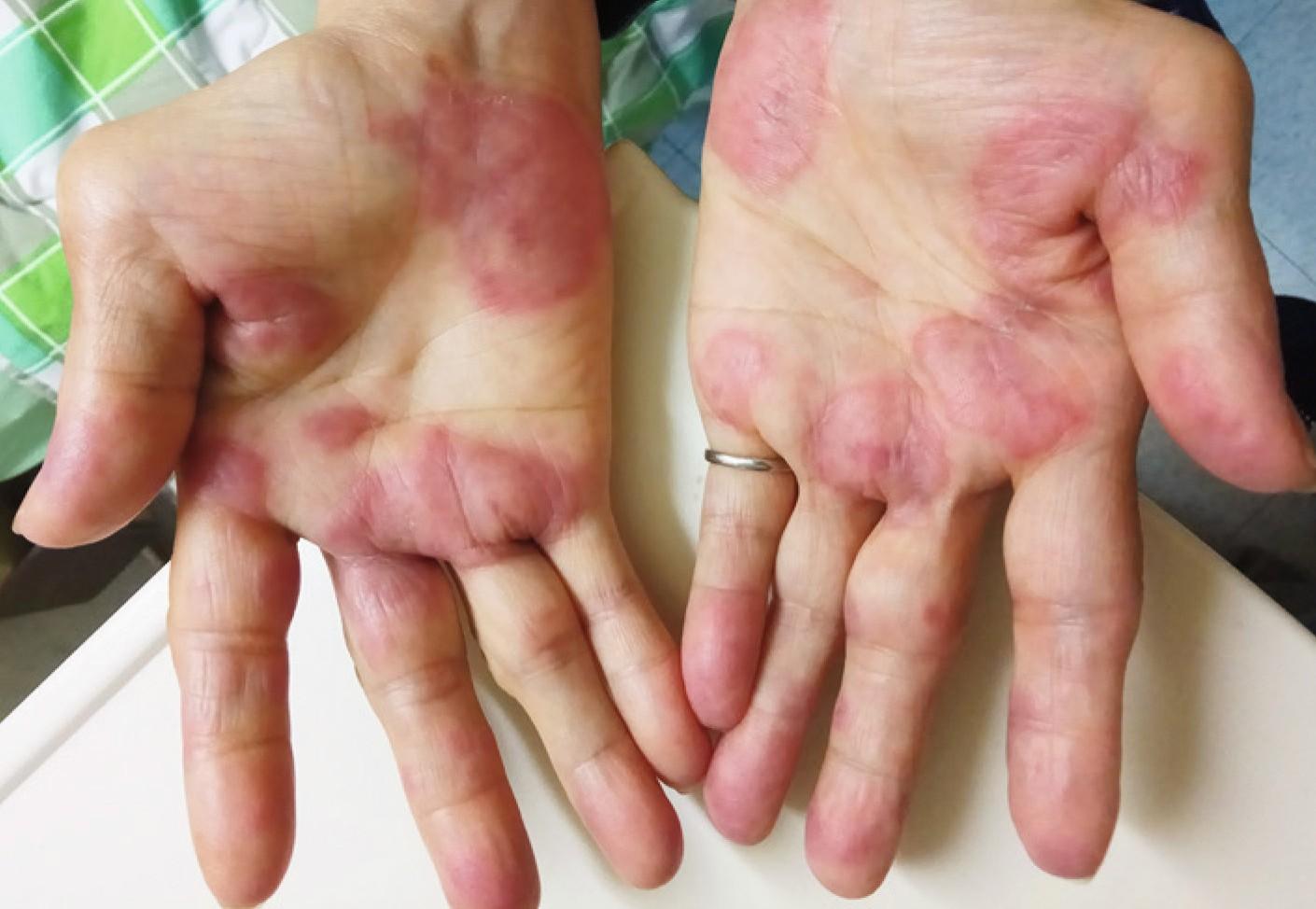 rote flecken auf der handfläche