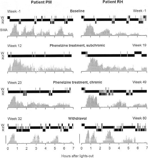 Effect of Chronic Phenelzine Treatment on REM Sleep: Report of Three