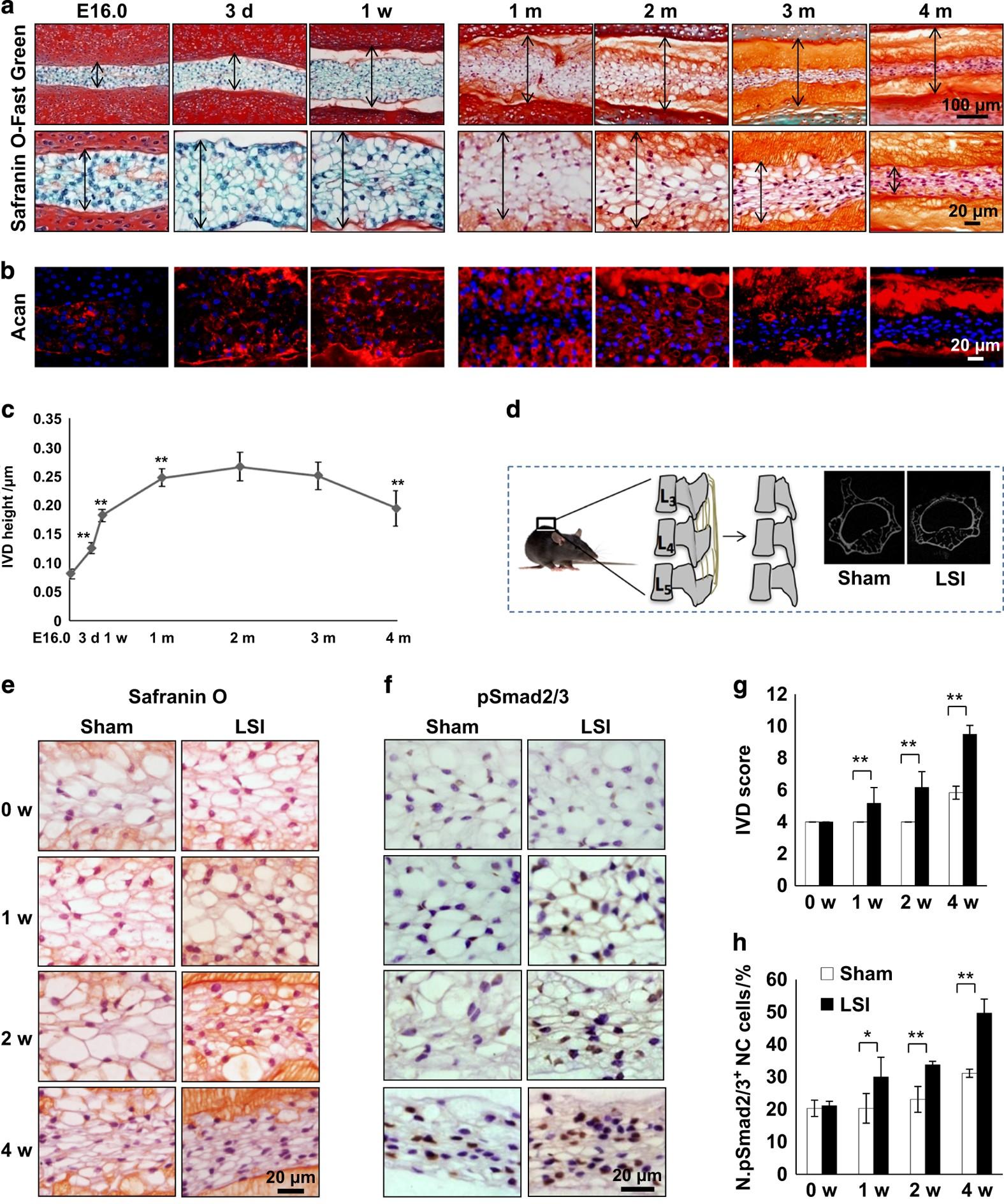 Mechanosignaling activation of TGFβ maintains intervertebral