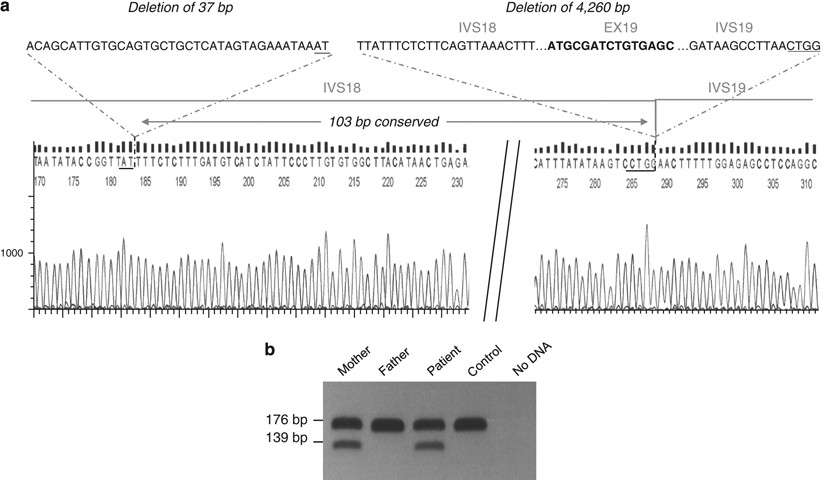 A Novel Double Deletion Underscores The Importance Of Characterizing End Points Of The Cftr Large Rearrangements European Journal Of Human Genetics