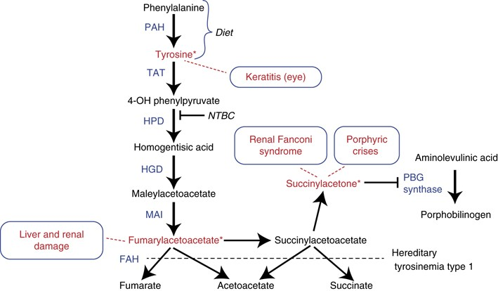 how to pronounce phenylketonuria