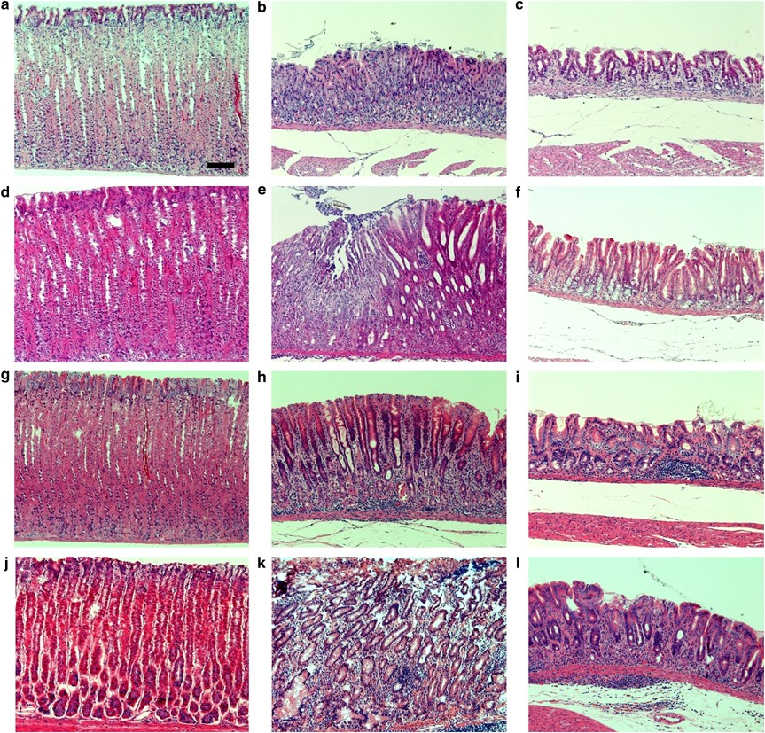Emergence Of Spasmolytic Polypeptide Expressing Metaplasia In