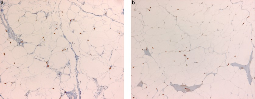 Value And Limitation Of Immunohistochemical Expression Of Hmga2 In