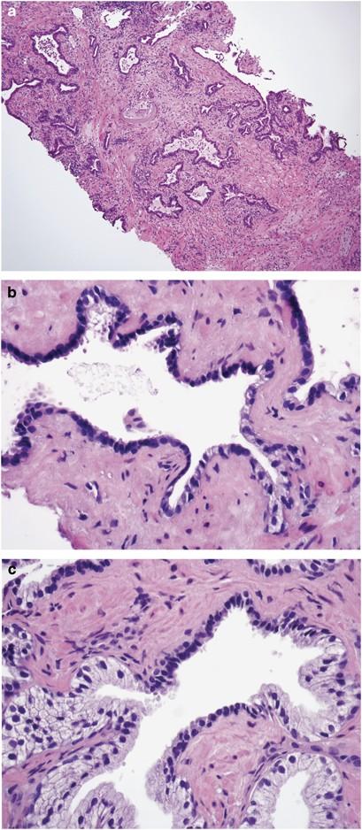 Diffuse Displasia Prostati