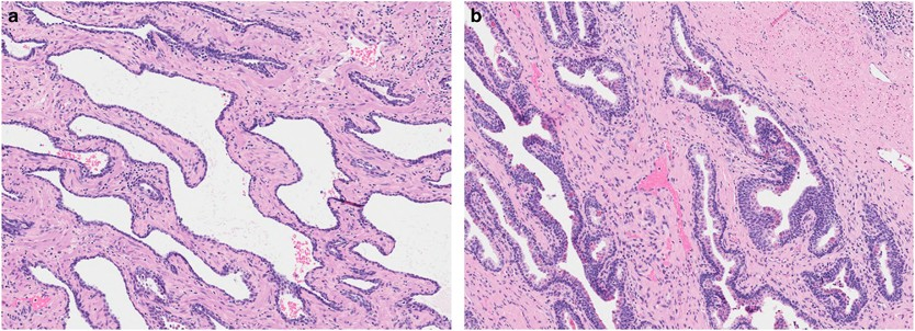 prostate cancer treatment effect histology