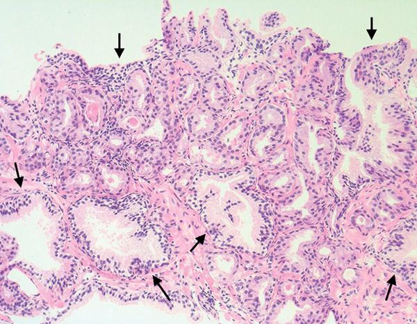 prostatahyperplasie komplikationen