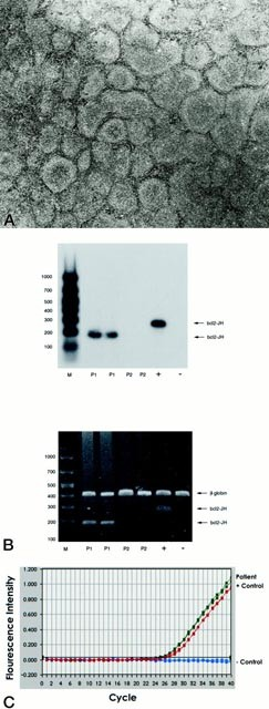 5′ → 3′ Exonuclease-Based Real-Time PCR Assays for