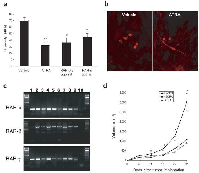 BMP-2 mediates retinoid-induced apoptosis in medulloblastoma