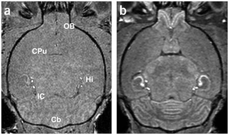 In vivo auditory brain mapping in mice with Mn-enhanced MRI