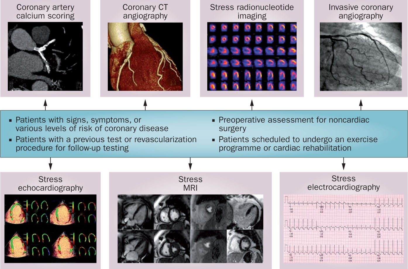 symptoms of coronary heart disease articles