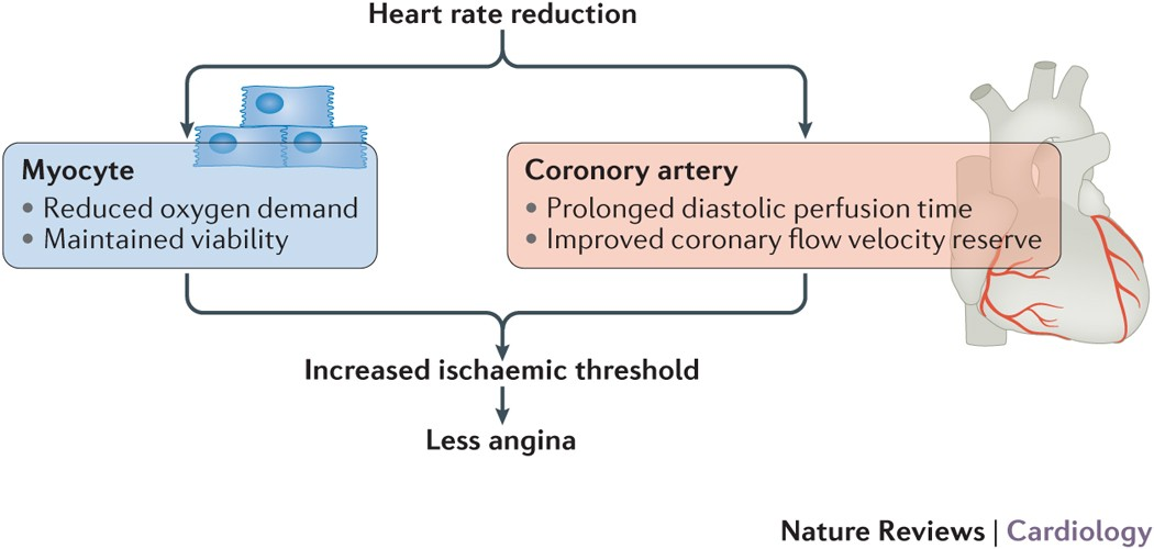 prolonged occlusion of the right coronary artery