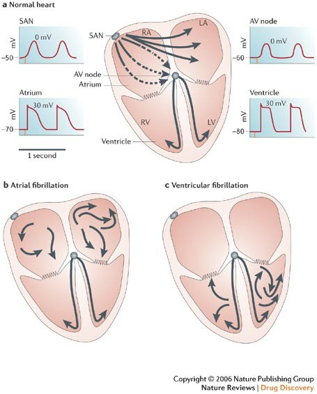249dc41f107 a | Normal heart.The heart has its own pacemaker: the sino-atrial node  (SAN), which produces regular electrical impulses at an appropriate rate  (normally ...
