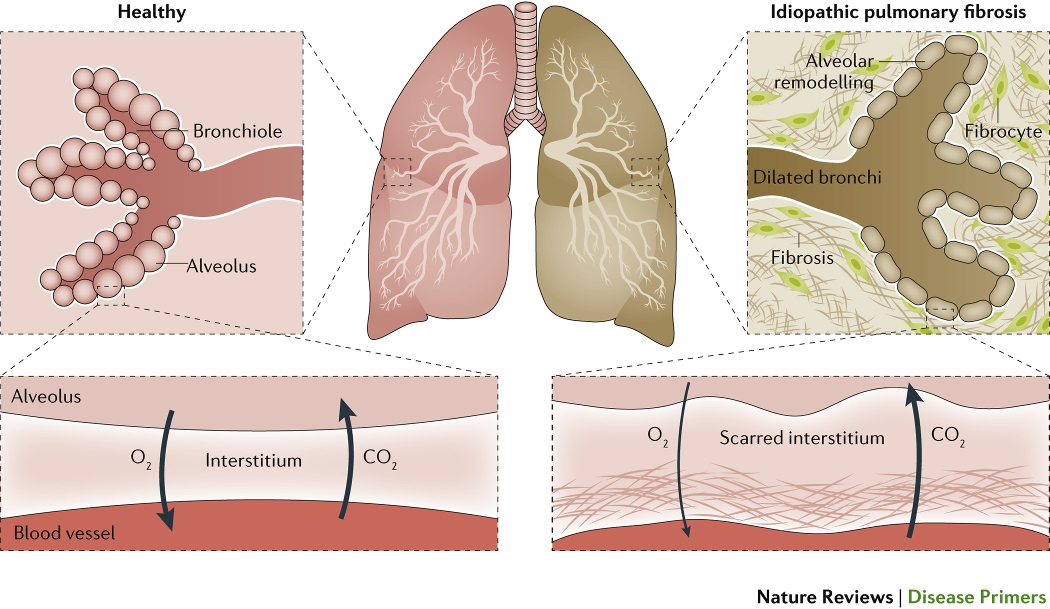 Image Result For Lung Fibrosis