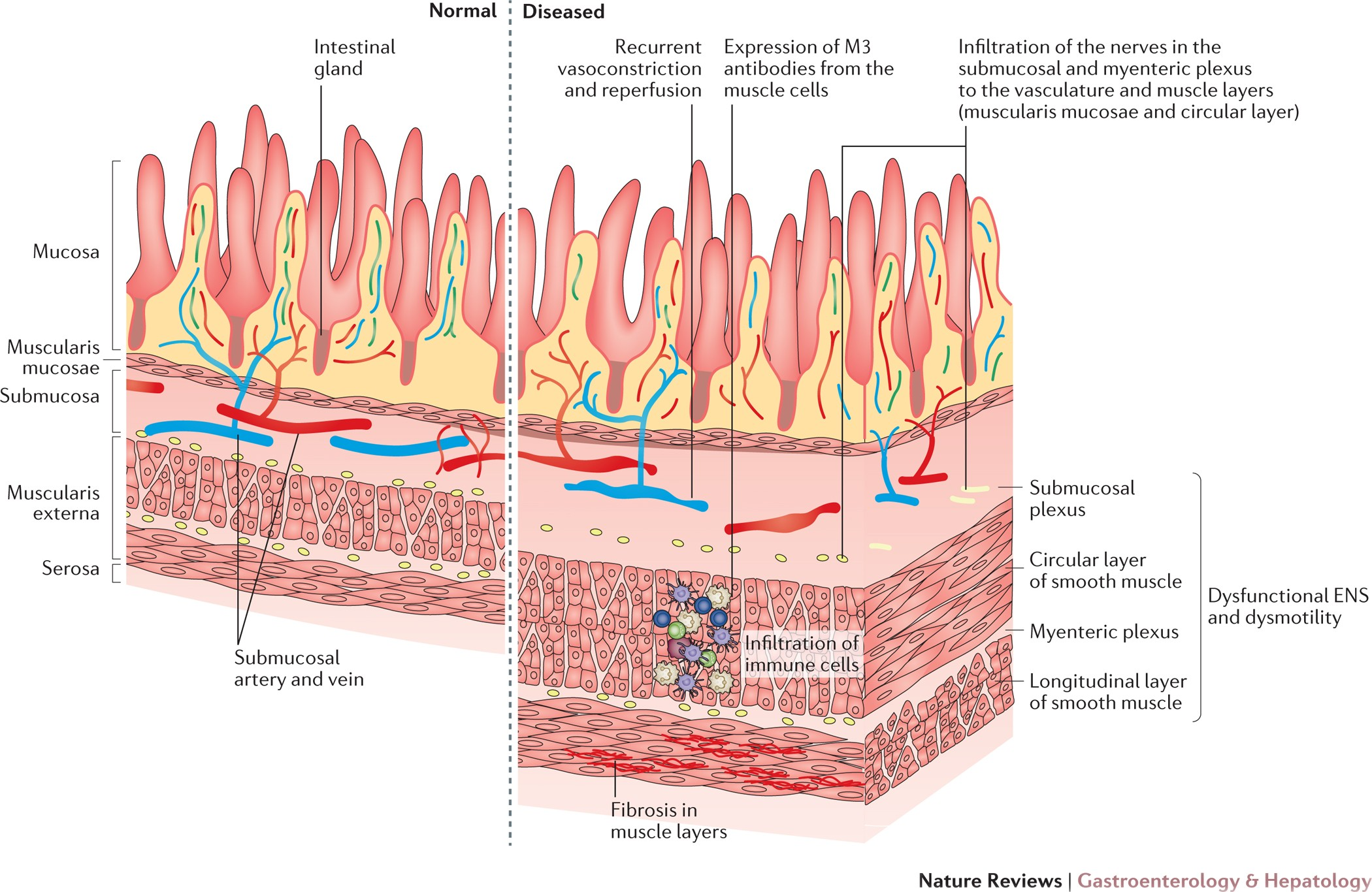 Cur Management Of The Gastrointestinal Complications