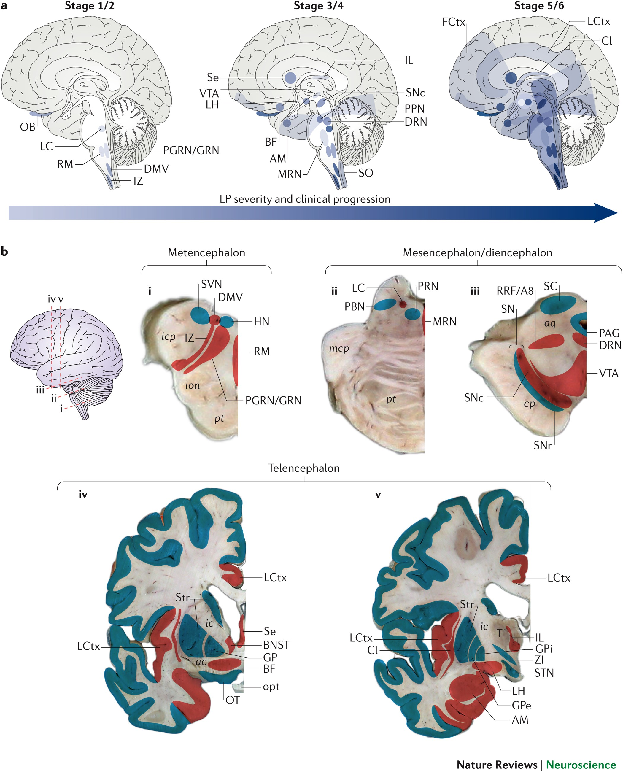 Selective Neuronal Vulnerability In Parkinson Disease Nature