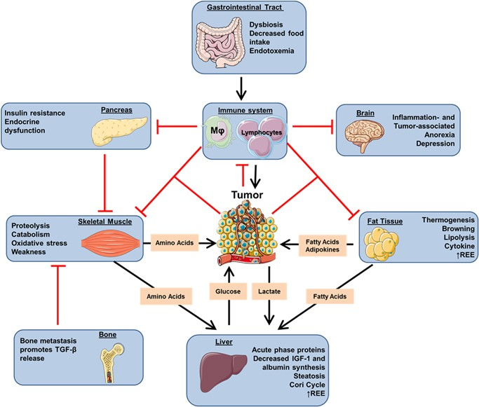 cancer metabolism syndrome