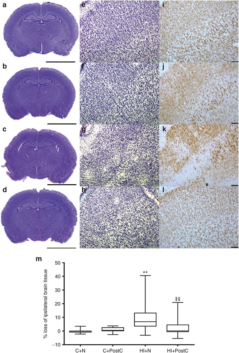 Hypoxic postconditioning reduces microglial activation