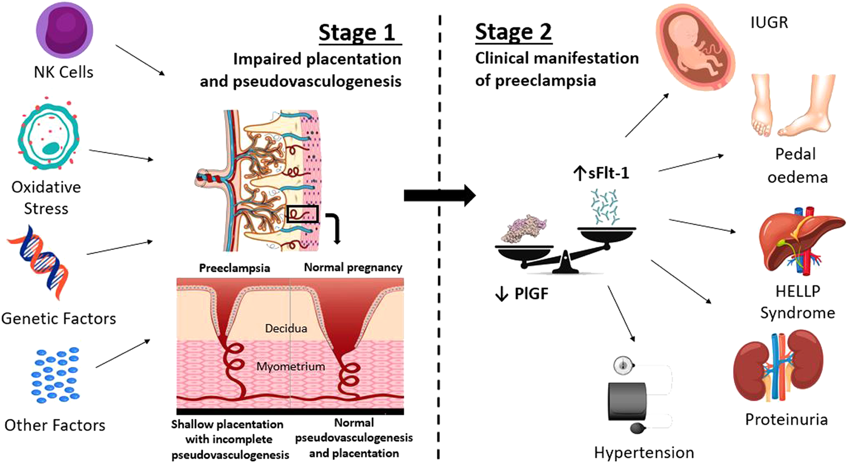 aspirin in the prevention of preeclampsia: the conundrum of how, who and  when | journal of human hypertension