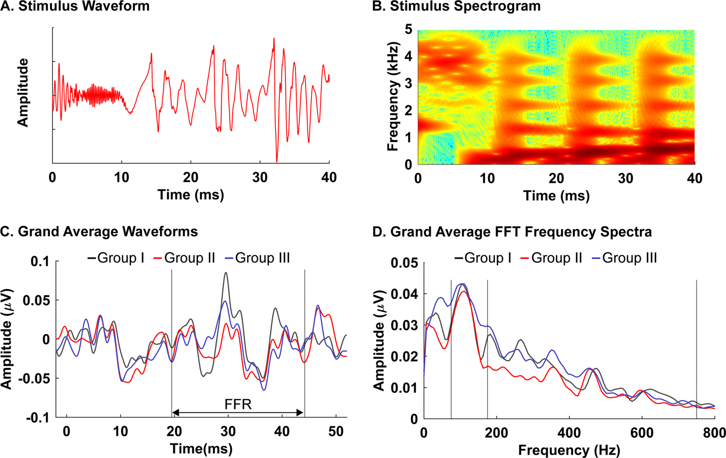 Frequency-following response among neonates with progressive