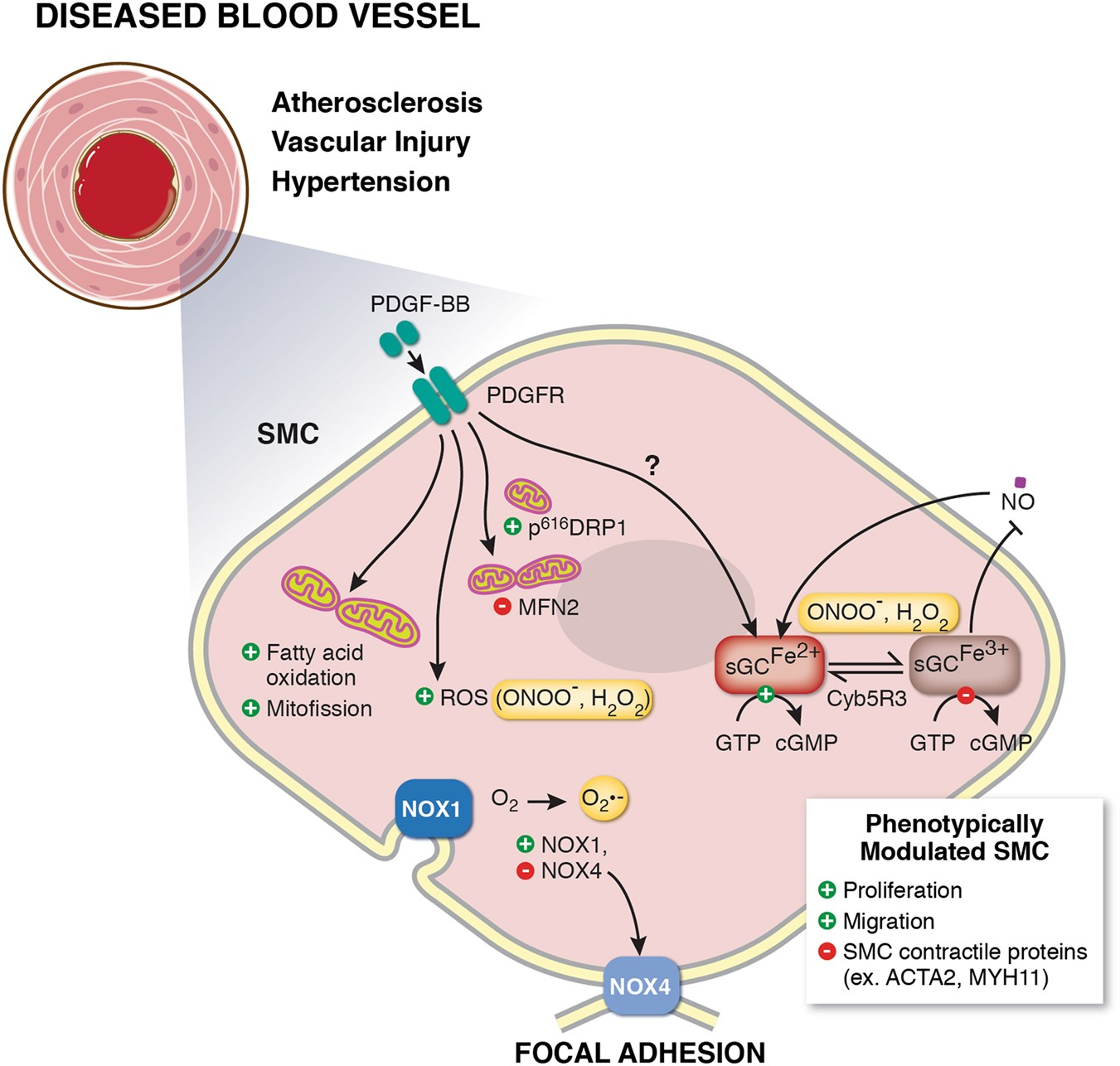 Redox Control Of Vascular Smooth Muscle Cell Function And Plasticity