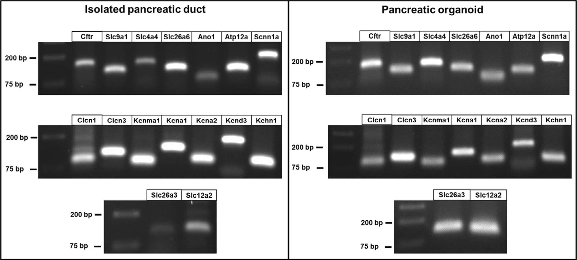 Mouse pancreatic ductal organoid culture as a relevant model to study