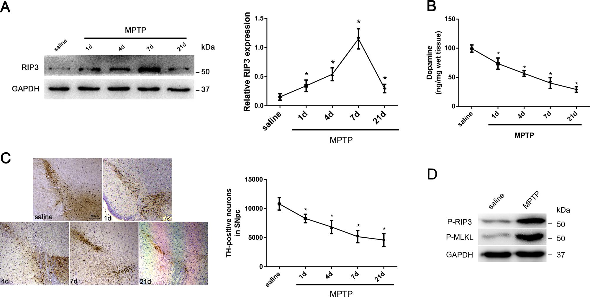 RIP1/RIP3/MLKL mediates dopaminergic neuron necroptosis in a mouse mod