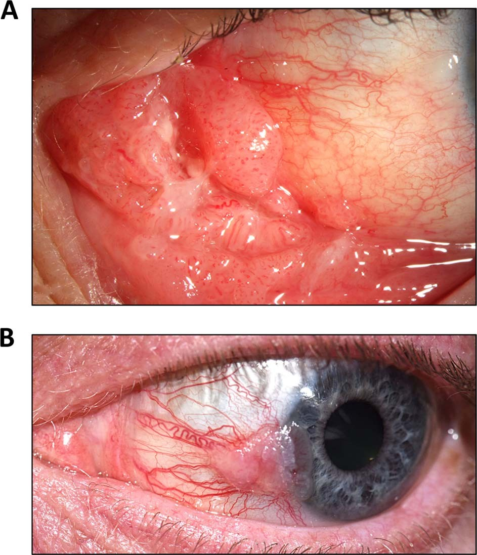 Human papillomavirus type 16 causes a defined subset of conjunctival i
