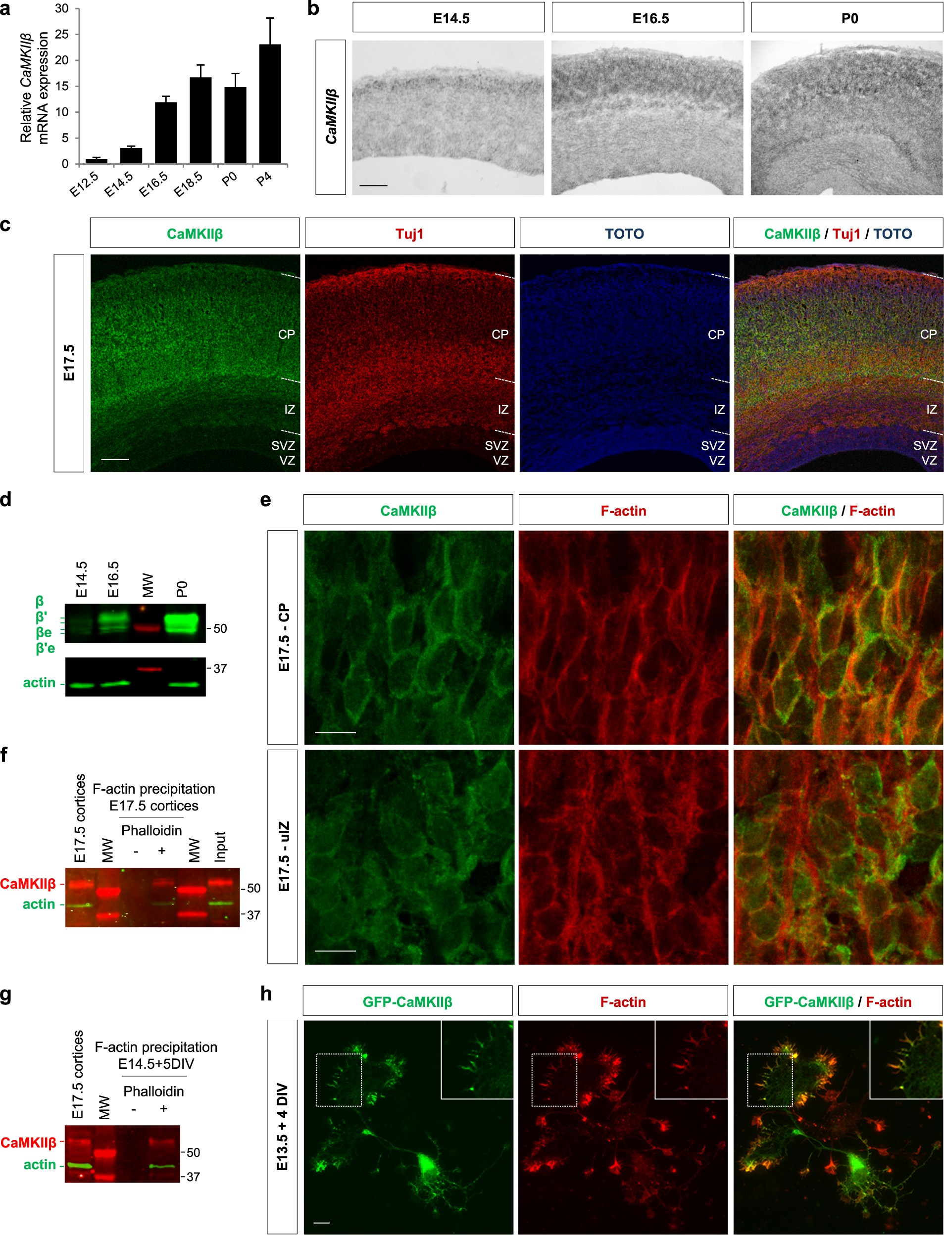 A novel role for CAMKIIβ in the regulation of cortical