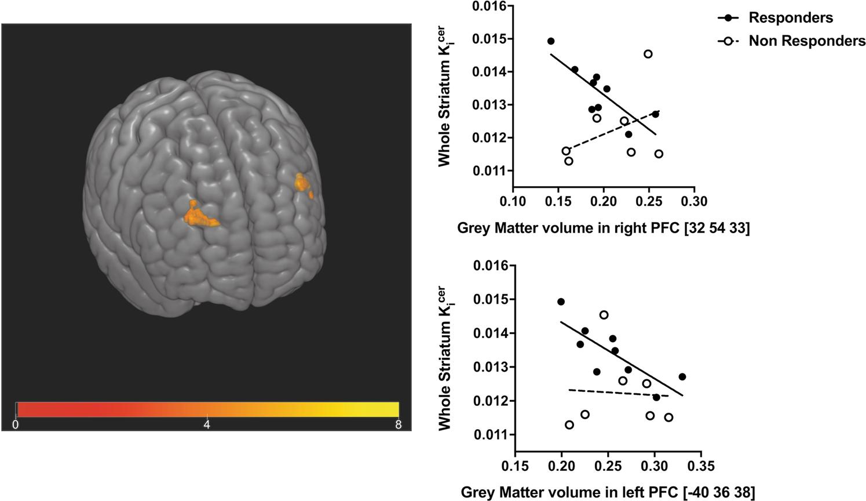 The relationship between grey matter volume and striatal dopamine func