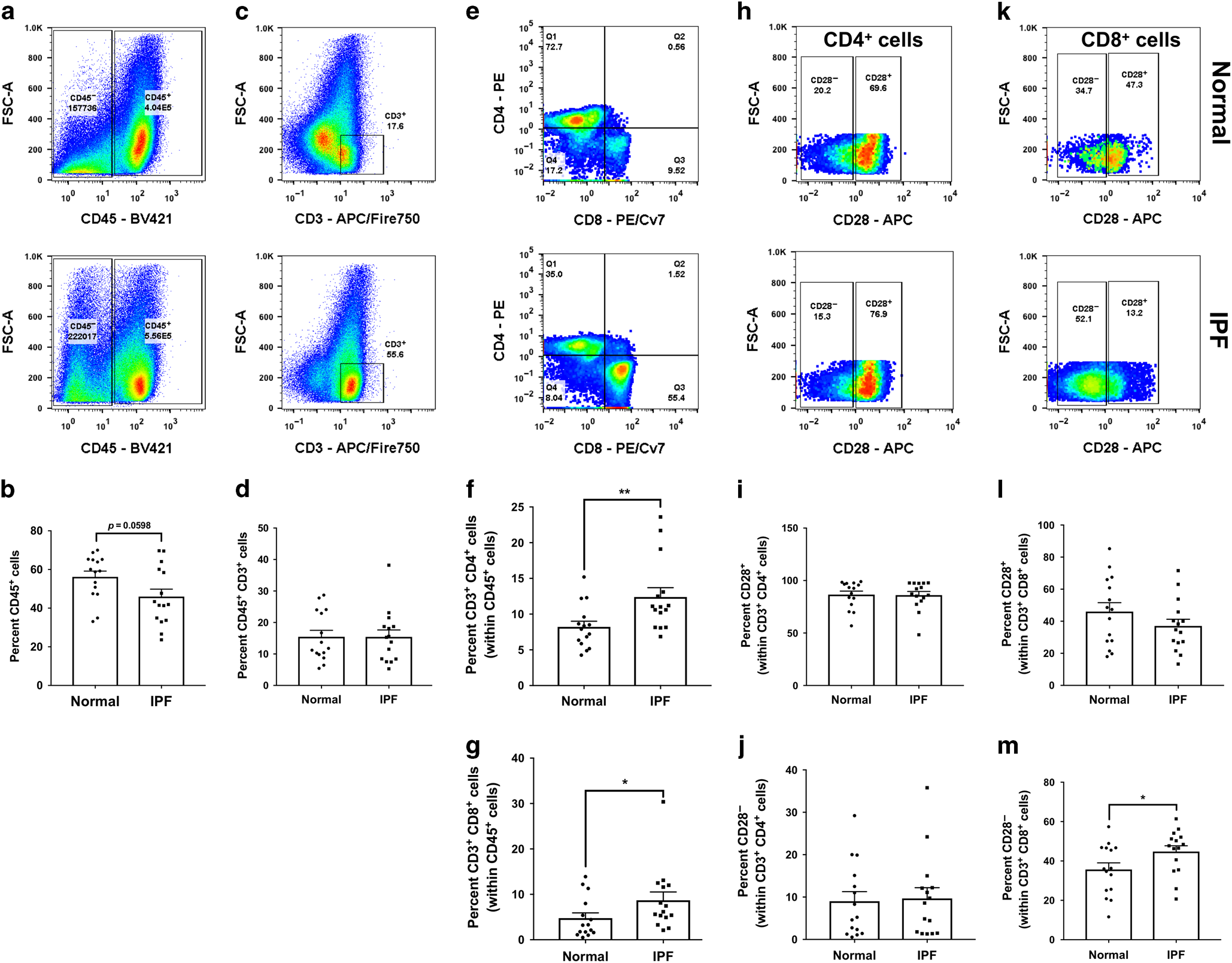 Characterization of CD28 null T cells in idiopathic pulmonary