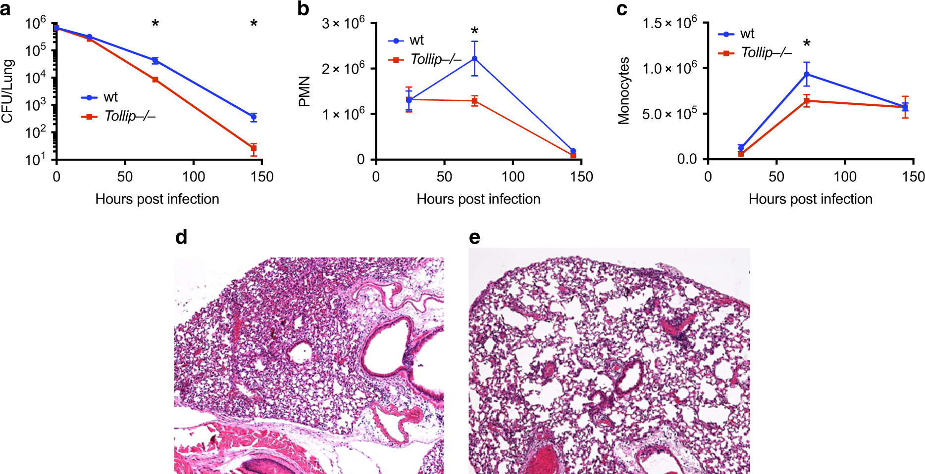 TOLLIP deficiency is associated with increased resistance to Legionell