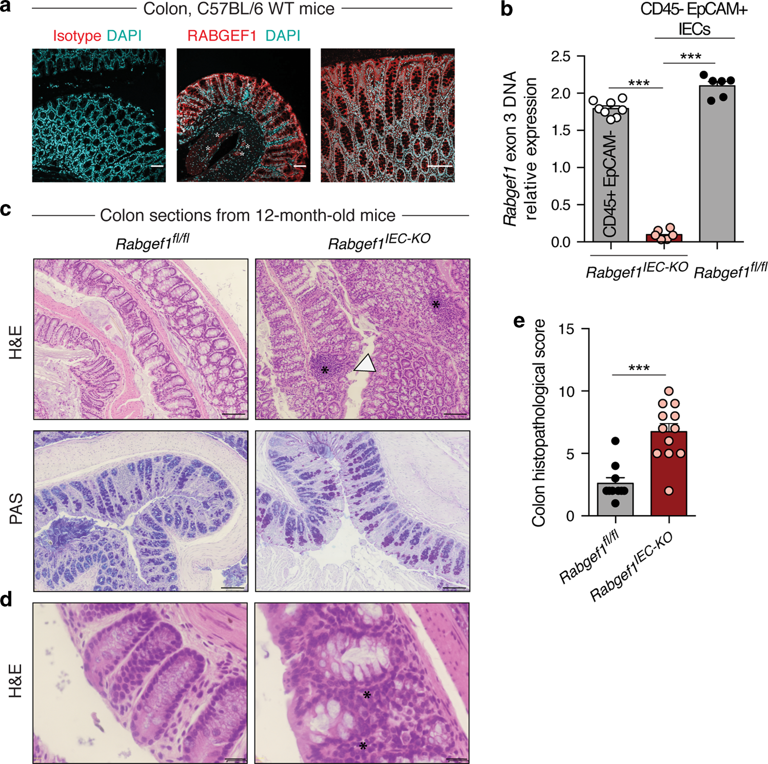 Epithelial RABGEF1 deficiency promotes intestinal inflammation by dysr