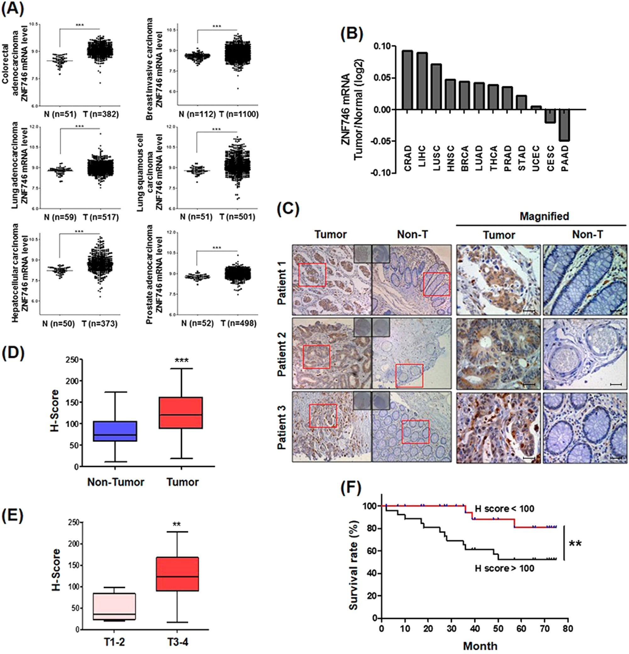 Zinc finger protein 746 promotes colorectal cancer