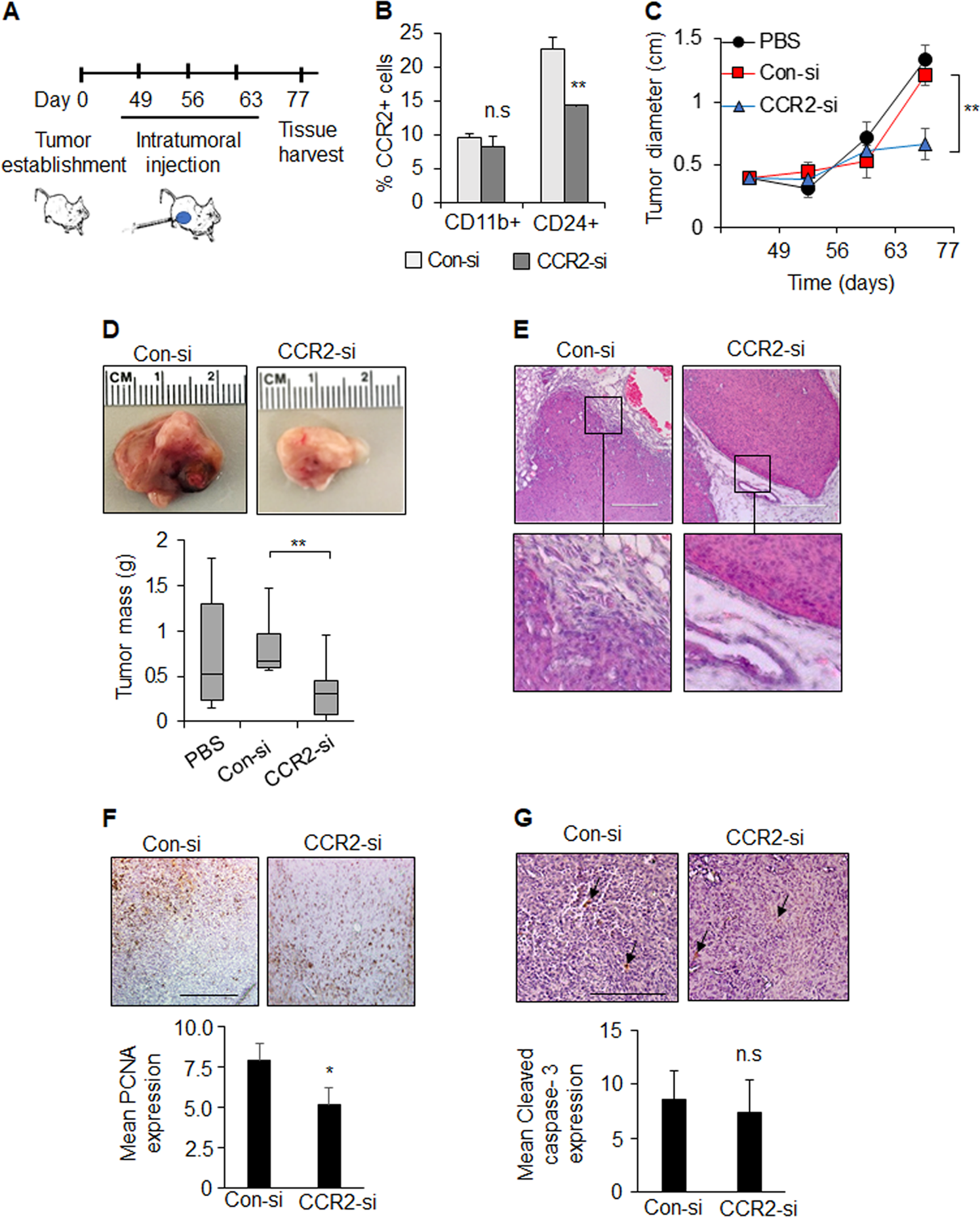 CCR2 signaling in breast carcinoma cells promotes tumor growth and inv