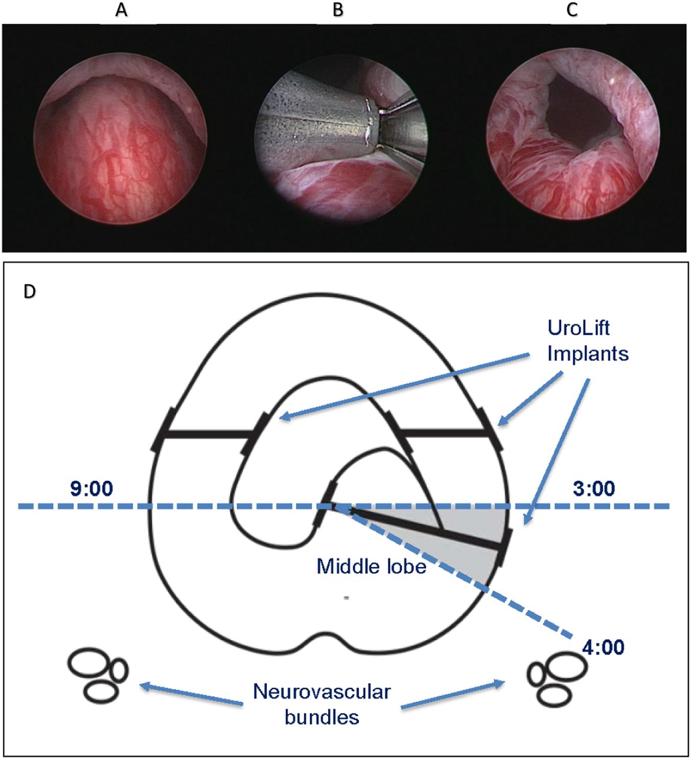 Prostatic Urethral Lift Pul For Obstructive Median Lobes 12 Month