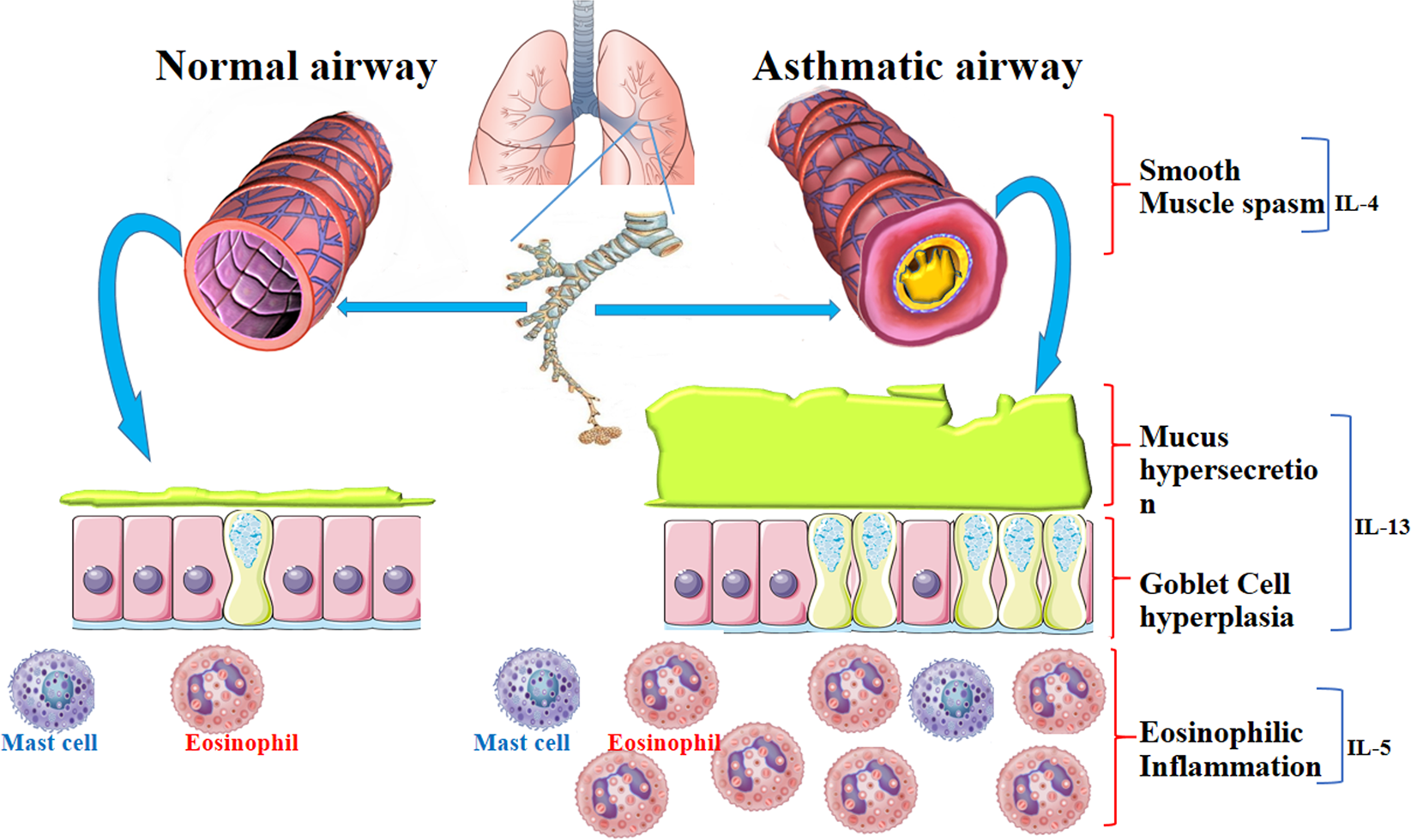 Targeting Cell Signaling In Allergic Asthma Signal Transduction