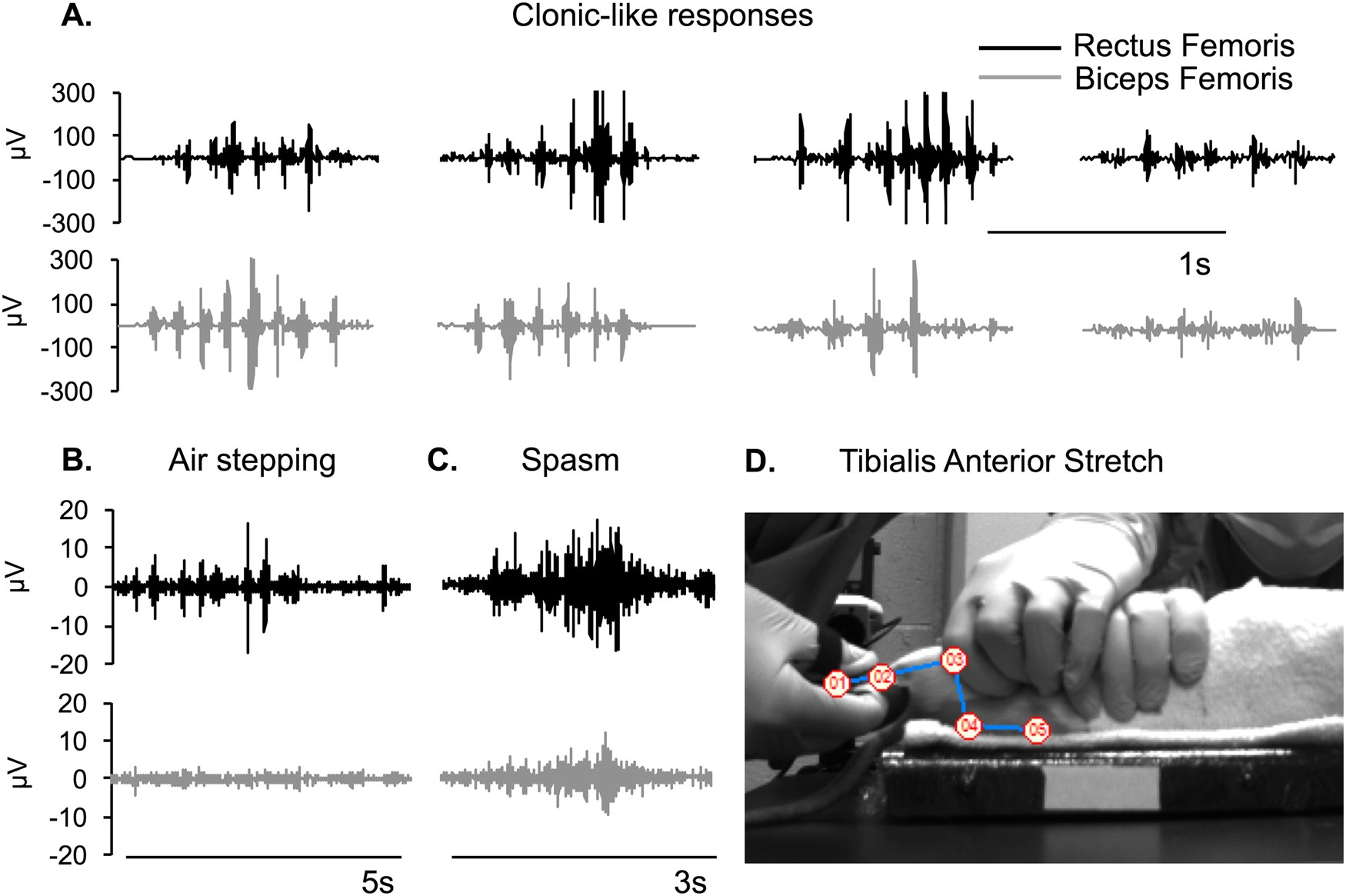 Electromyographic Patterns Of The Rat Hindlimb In Response To Muscle