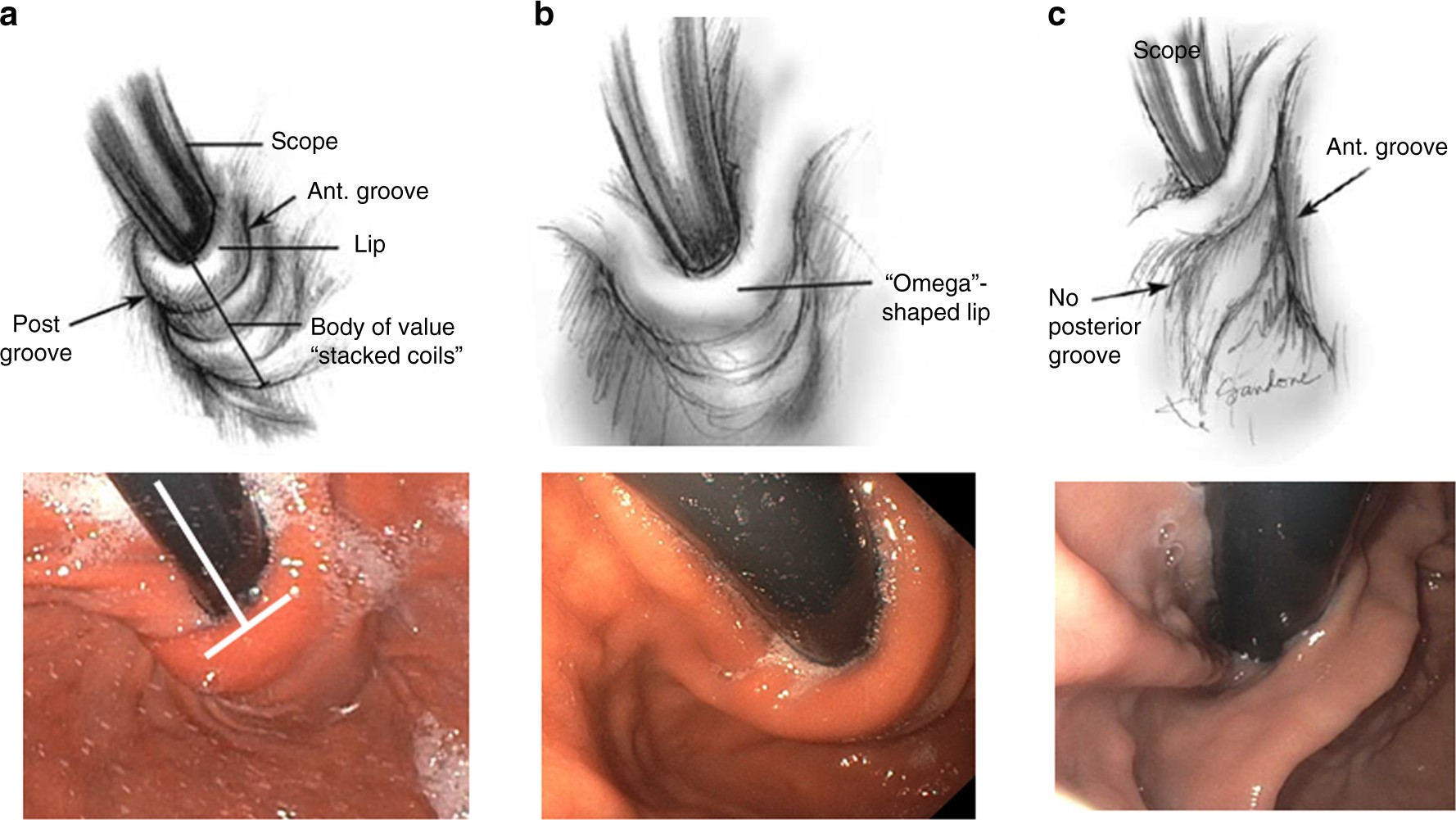 Complications of Antireflux Surgery   The American Journal of ...