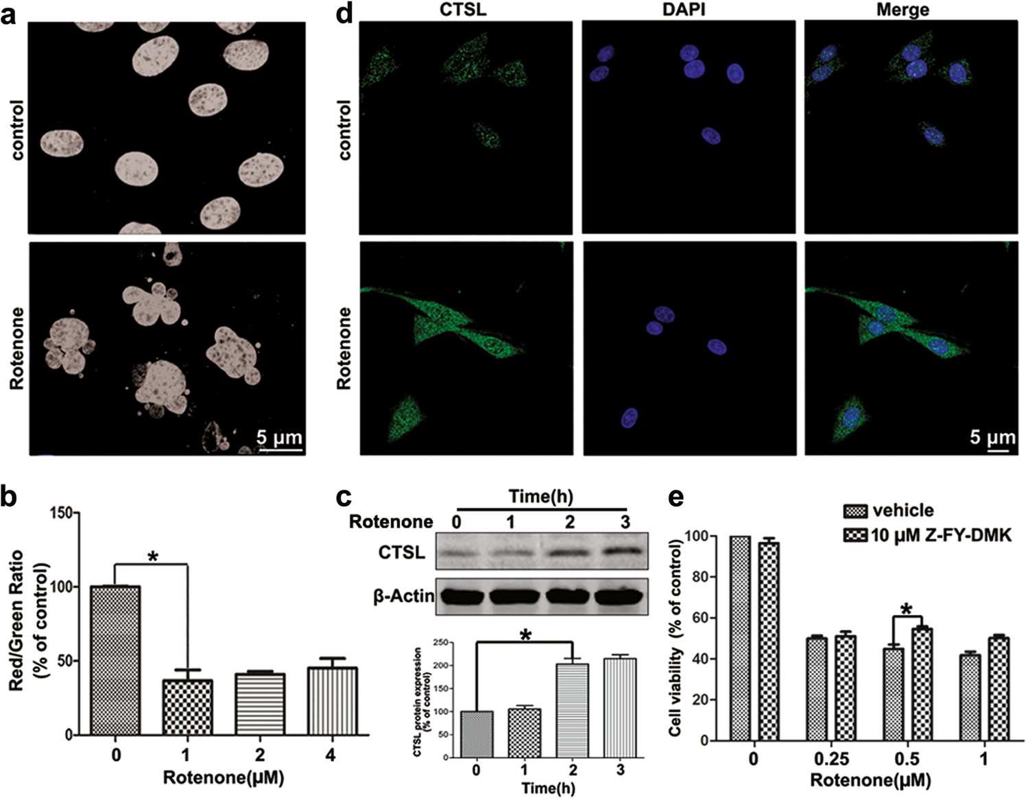 Cathepsin L induced PC-12 cell apoptosis via activation of B