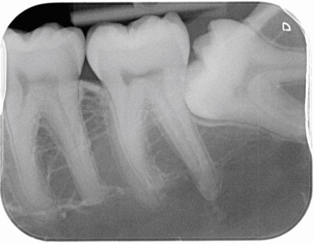 anemia x ray