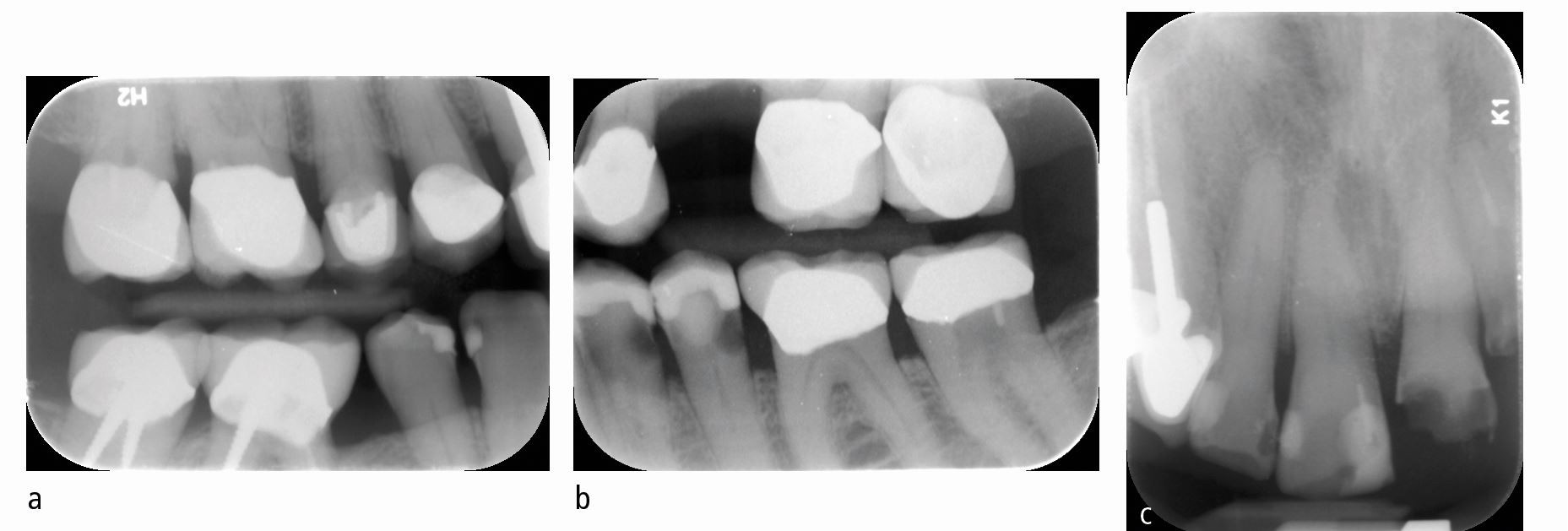 Dentistry and Parkinson's disease: learnings from two case reports